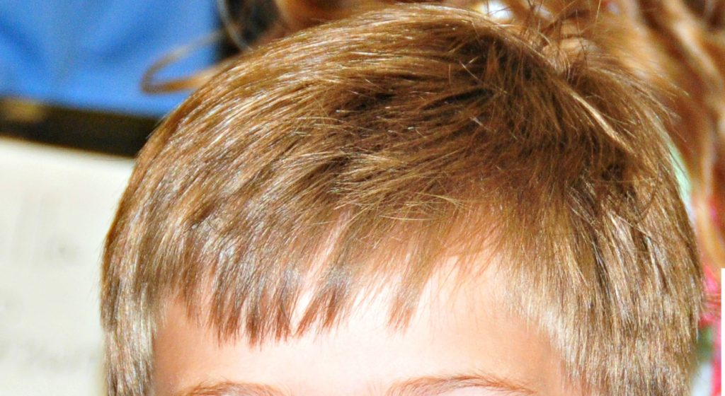 How to get rid of head lice quickly the neighborhood moms get rid of head lice quickly ccuart Choice Image